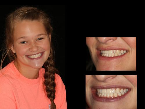 Thurmont Smiles