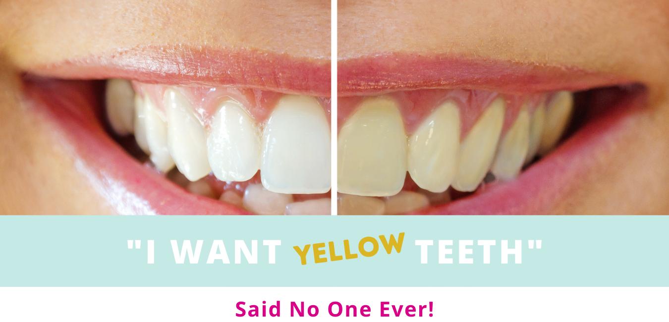 Teeth whitening Website top banners